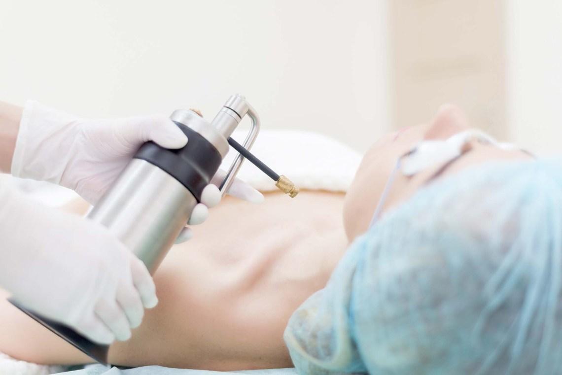 Liquid nitrogen. Doctor makes the patient cryotherapy procedure