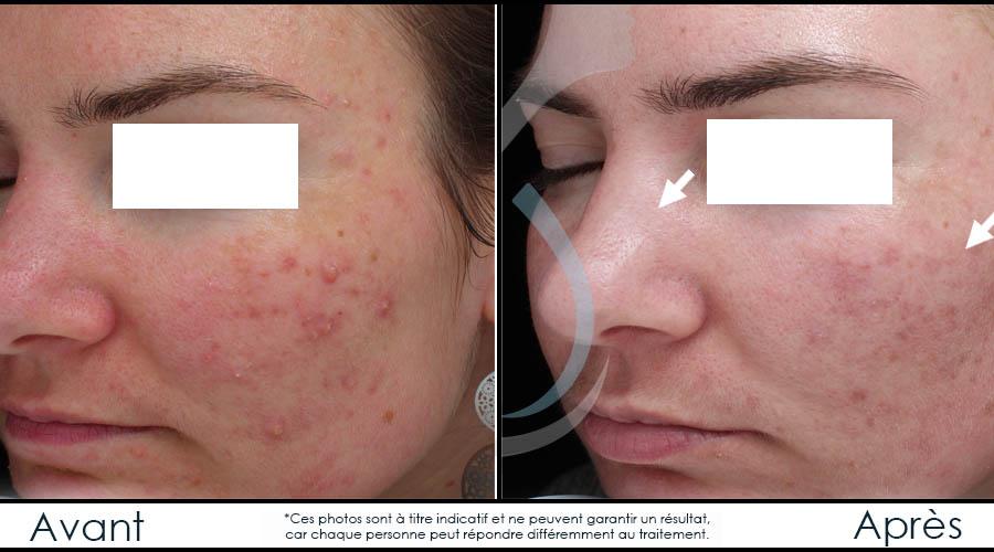 acne traitement