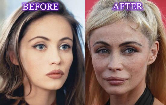 Emmanuelle-Beart-Plastic-Surgery-Picture