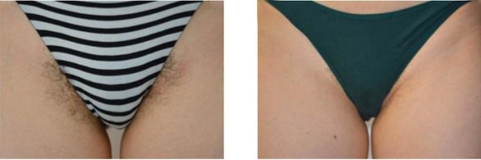cliomakeup-epilazione-laser-inguine-9-risultati