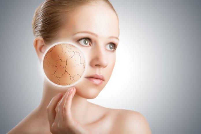 cliomakeup-tonico-viso-quale-scegliere-quando-applicarlo-prodotti-5-pelle arida