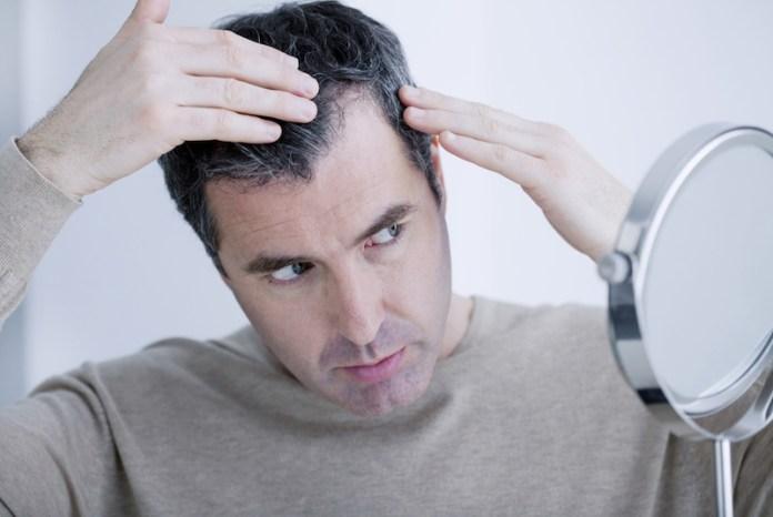 cliomakeup-capelli-diradati-5-stempiatura