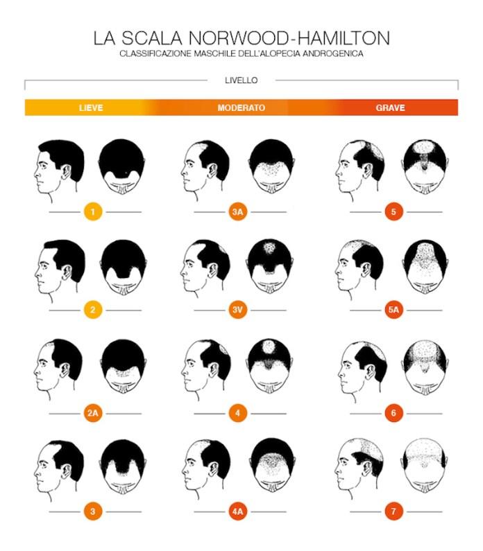 cliomakeup-capelli-diradati-6-scala-calvizia