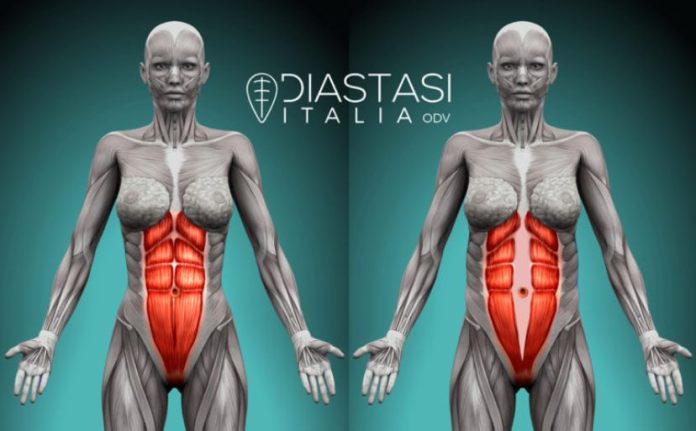 cliomakeup-diastasi-addominale-21-addome