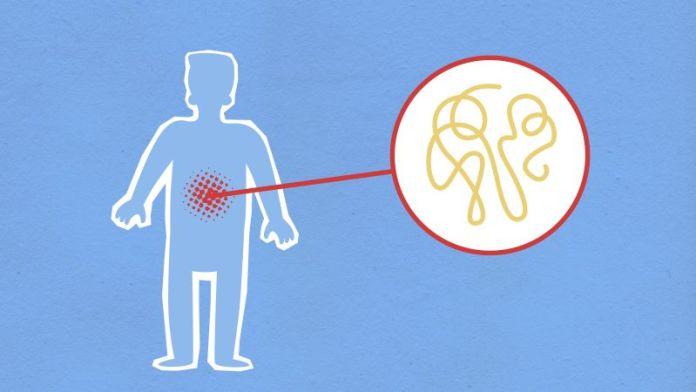 Cliomakeup-microbiota-intestinale-2-intestino