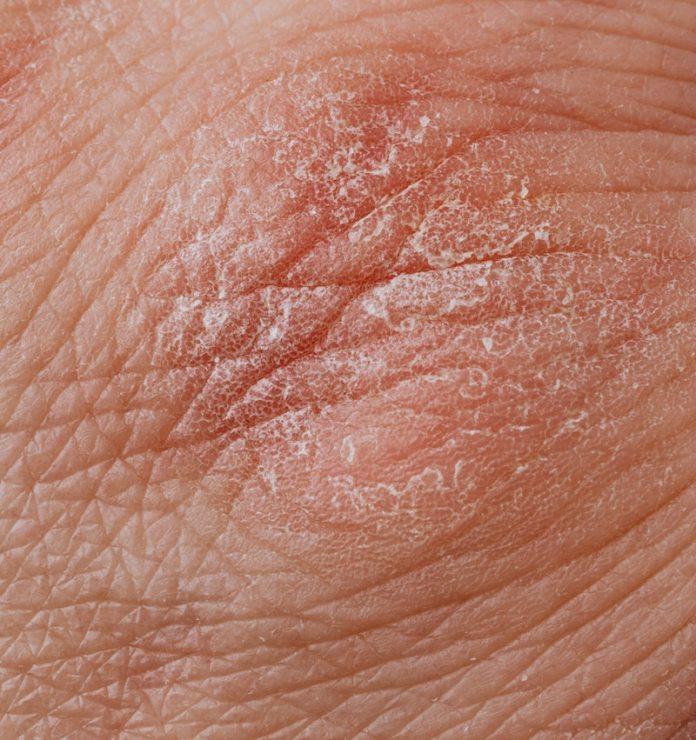 cliomakeup-doppia-detersione-pelle-secca-teamclio-1