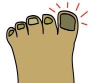 free big toe cliparts