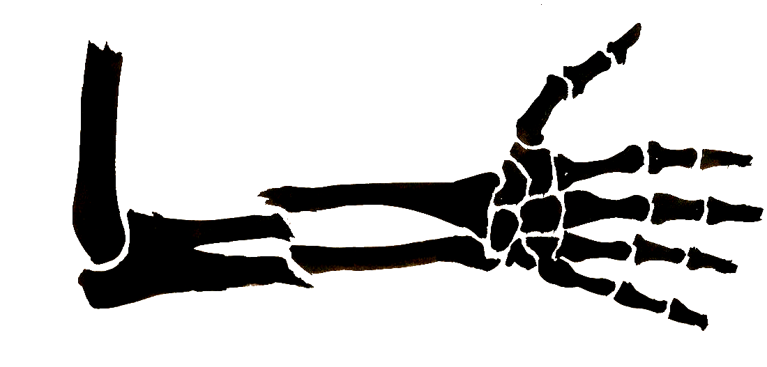 Free Pictures Of Broken Arm, Download Free Clip Art, Free