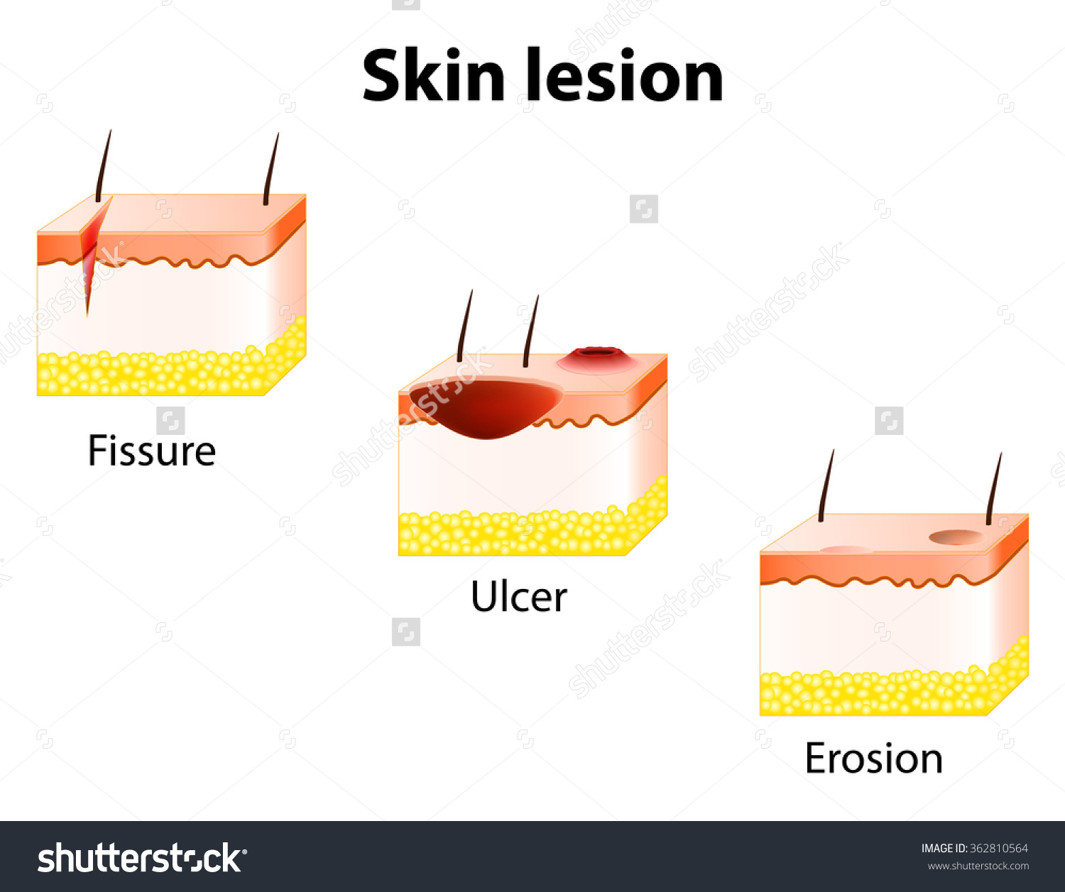 Erosion Forms Clipart
