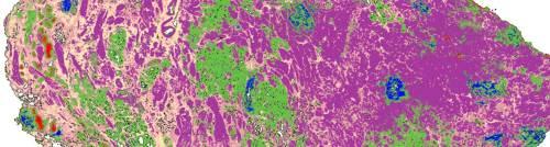 prostate-random-forest_1500x401