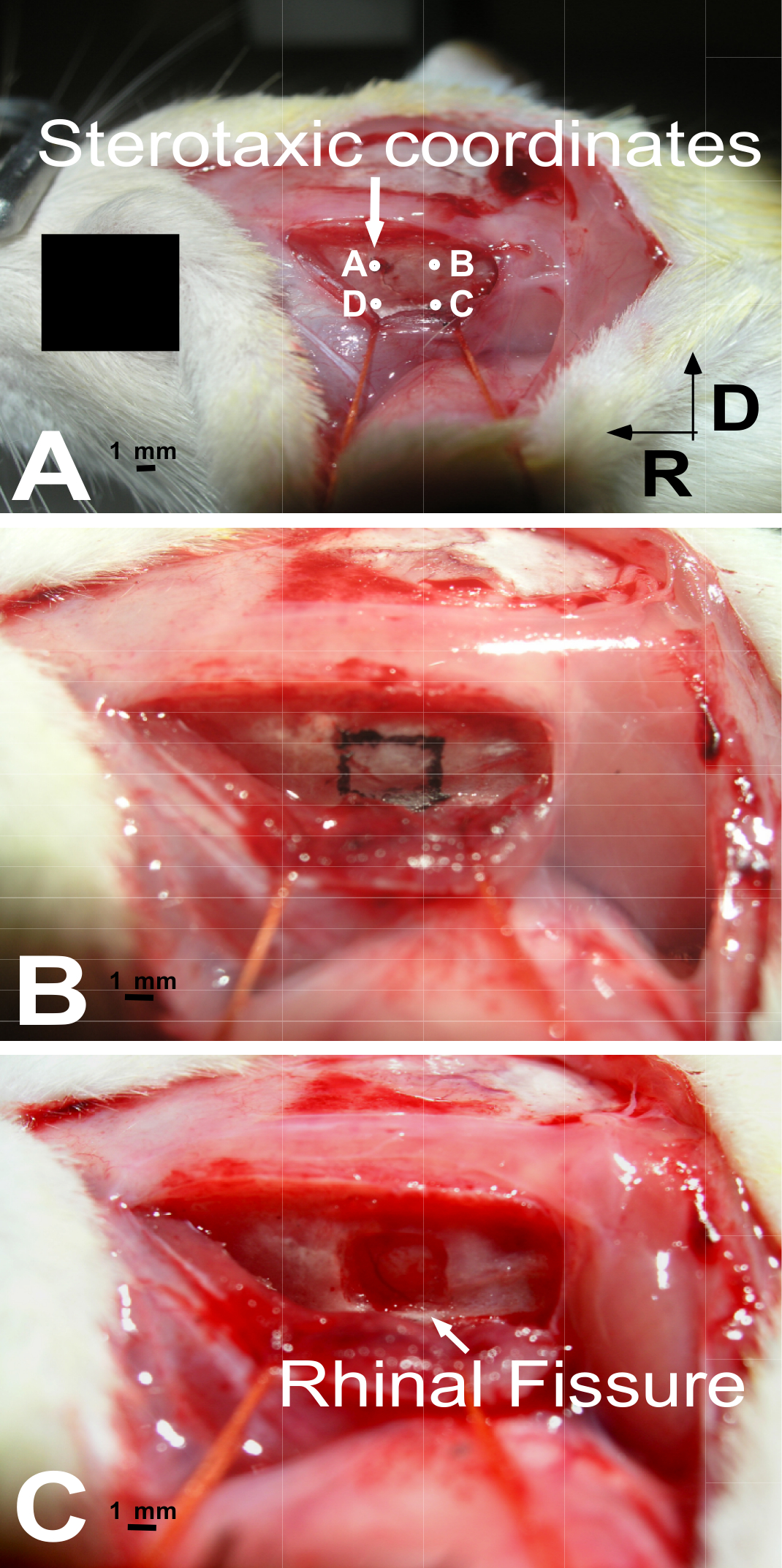 Stereotactically Guided Ablation Of The Rat Auditory