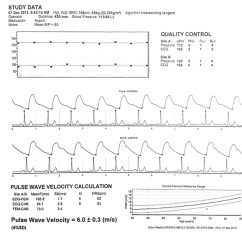 Foot Pulses Diagram Ge Xl44 Gas Range Parts Pulse Wave Velocity Testing In The Baltimore Longitudinal Study Of Carotid Femoral Waveforms From And Arterial Sites Are Displayed Each Waveform Corresponding