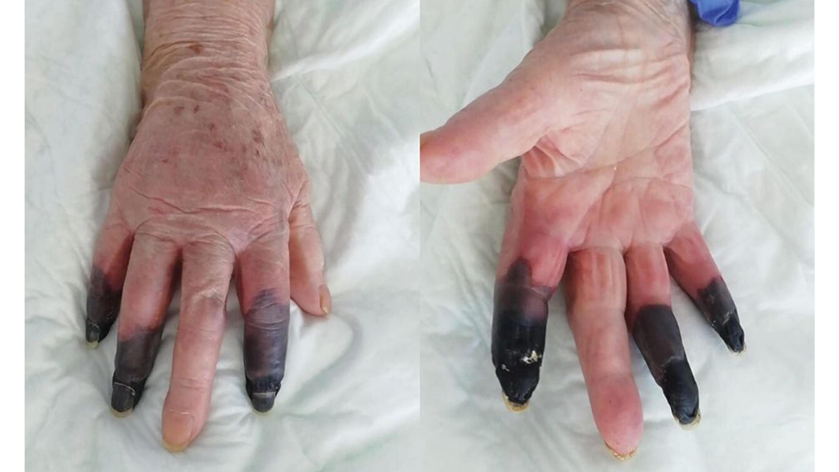 nach corona infektion 3 finger dieser