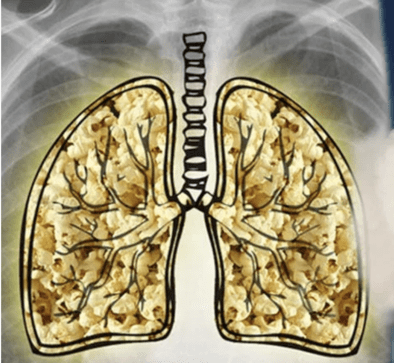 Popcorn lung cartoon