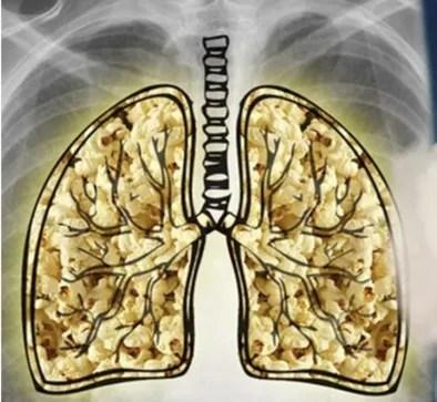 Popcorn lung cartoon