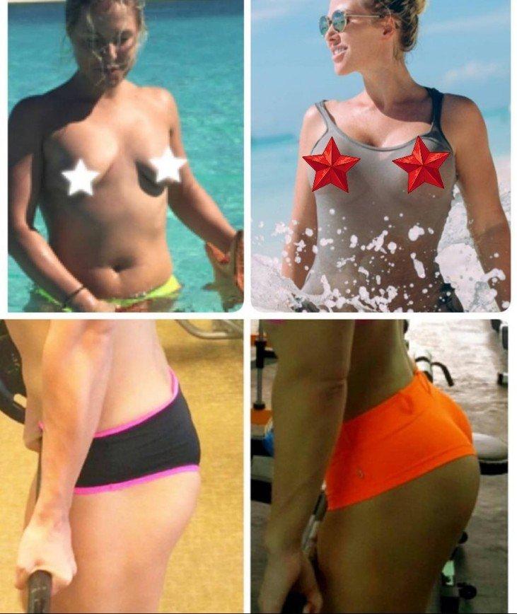 Ирина мещанская до и после пластики фото