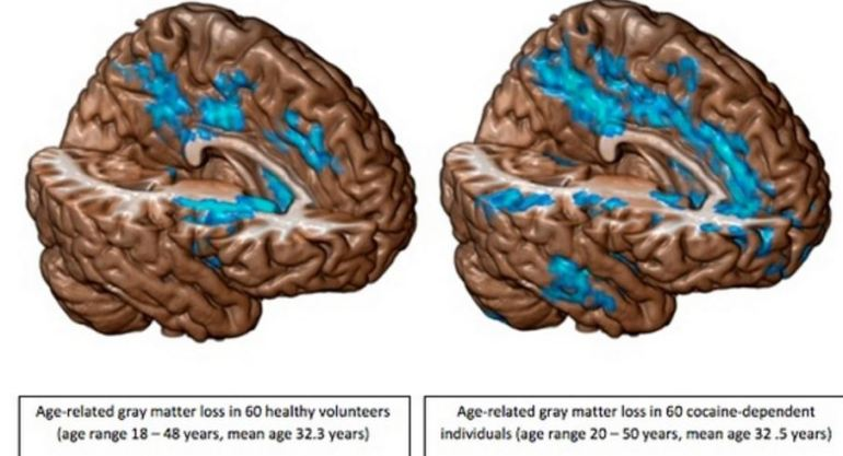 narcotics pain meds shrinks the brain