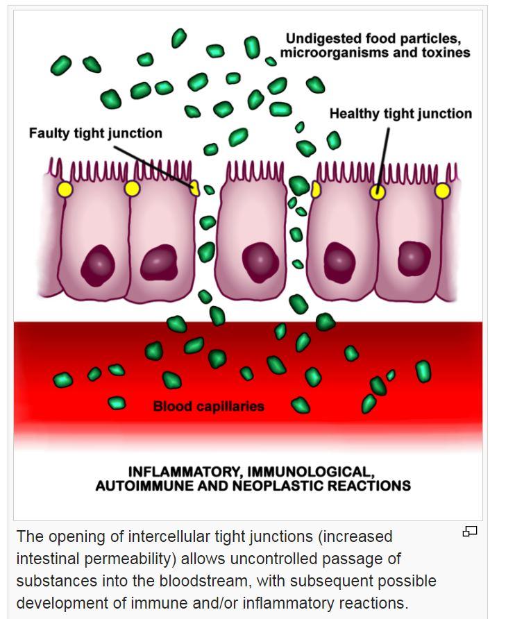 intestinal.JPG