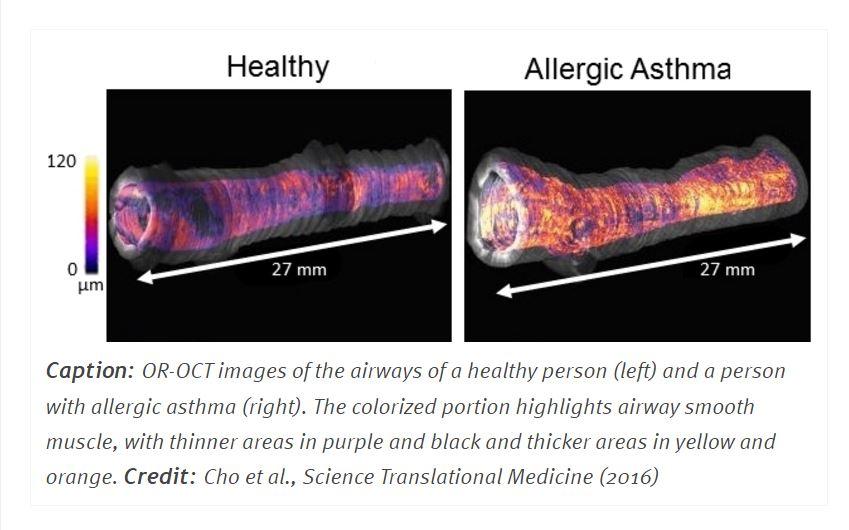 airway-disease