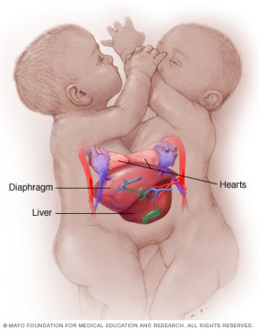 Mayo Clinic conjoined twins' illustration