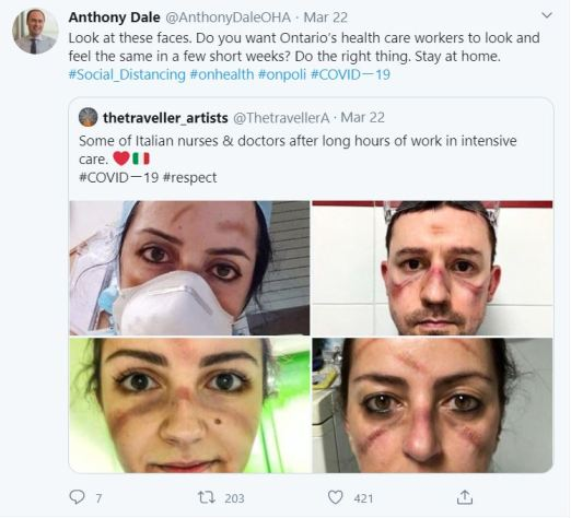 Picture of a screen capture from a Tweet from Anthony Dale showing four Italian healthcare workers with bruises on their face caused by wearing a mask