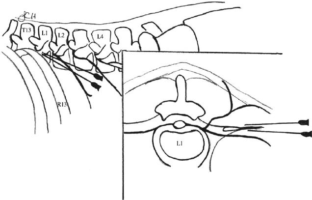 Paravertibral block