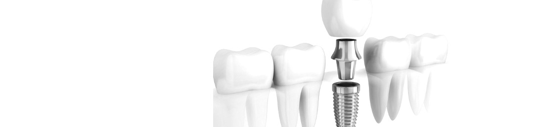 dentiste dentist implant dental practice