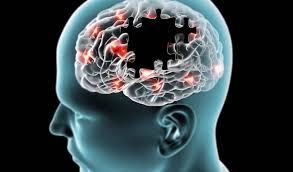 Lee más sobre el artículo ¿Qué es la demencia?
