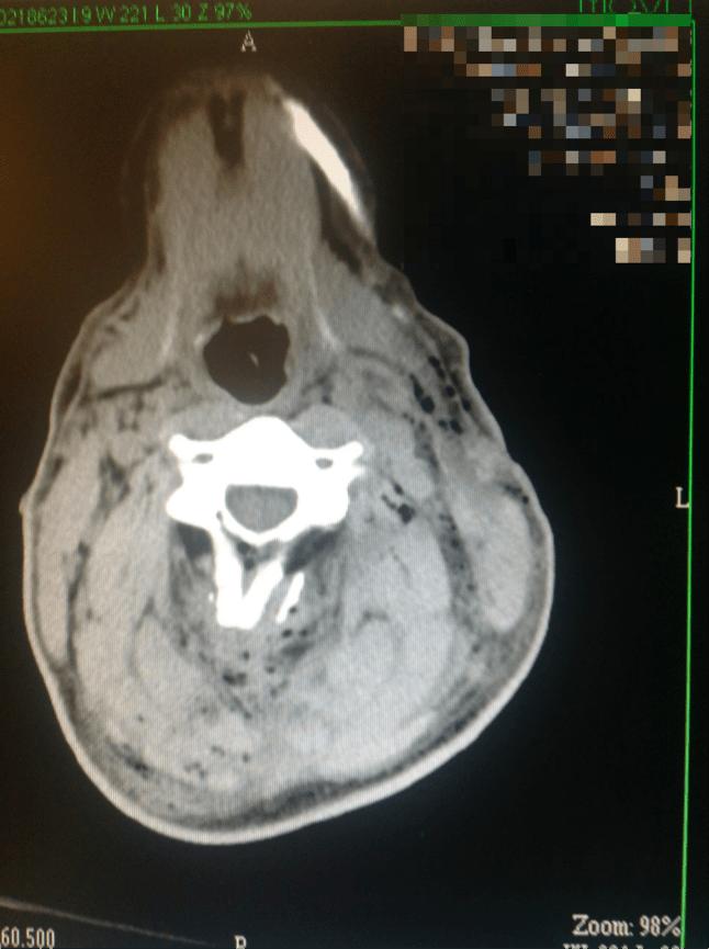 AK47-CT-scan-1