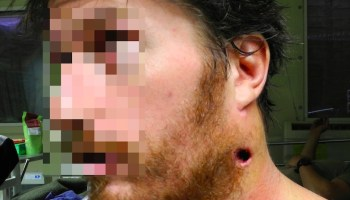 An AK-47 Bullet Through the Neck Couldn't Stop Him!