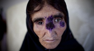 Disfiguring tropical disease is now spreading across the Middle East in ISIS controlled areas