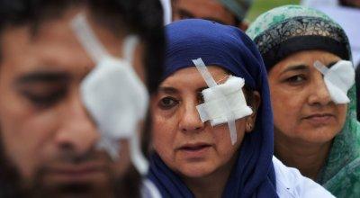 Pellet Guns Used in Kashmir Protests Cause 'Dead Eyes' Epidemic