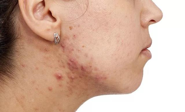 cliomakeup-acne-tardiva-2