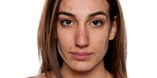 cliomakeup-acne-tardiva-5