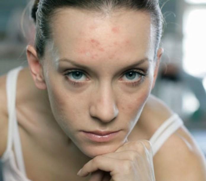 cliomakeup-acne-tardiva-7
