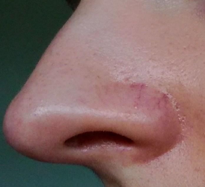 cliomakeup-capillari-rotti-naso-2-vene