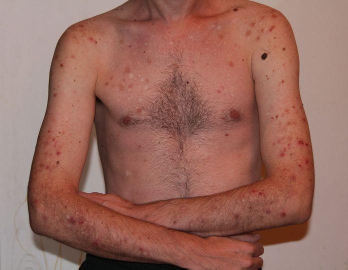 cliomakeup-dermatillomania-trattamenti-cure-cicatrici (9)