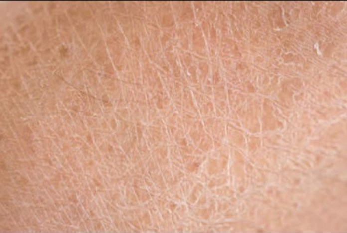 cliomakeup-pelle-secca-estate-10-derma