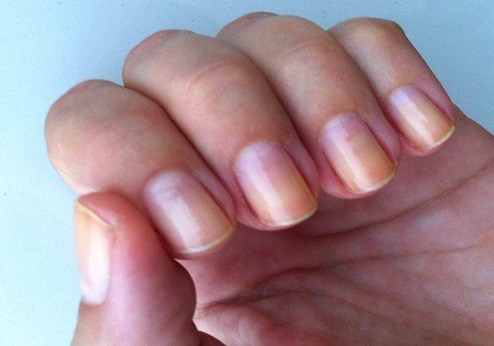 cliomakeup-limone-pelle-capelli-6-unghie-aloni