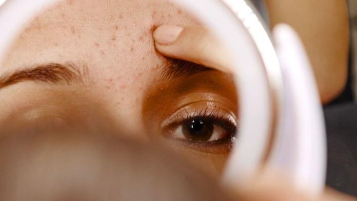 cliomakeup-skincare-pelle-acneica-1-copertina