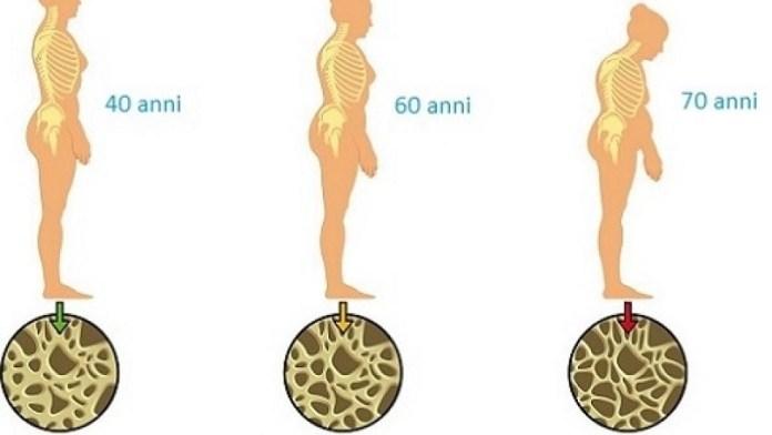 cliomakeup-prevenzione-osteoporosi-3-osteoporosi