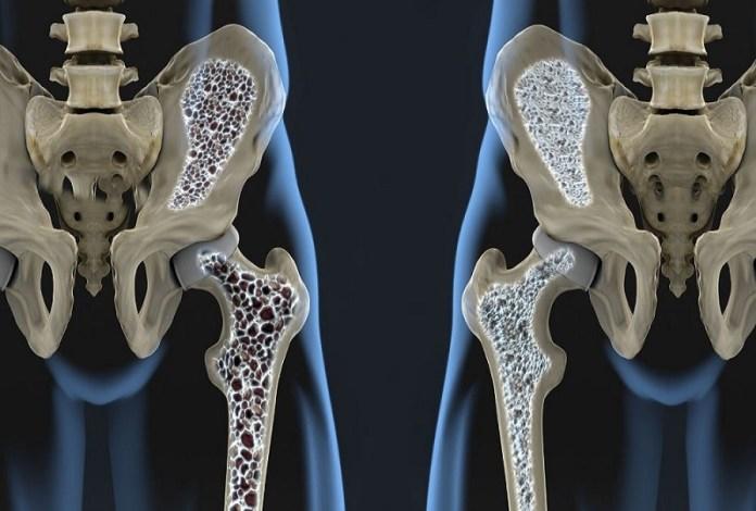 cliomakeup-prevenzione-osteoporosi-4-rischio-frattura