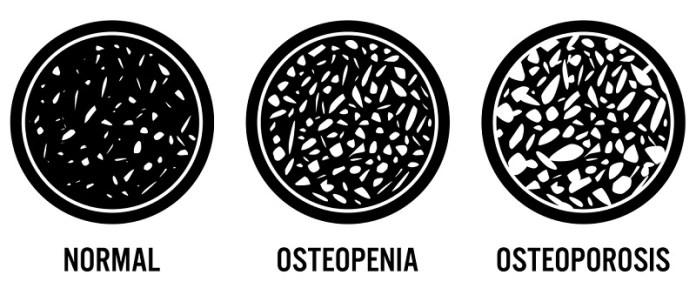 cliomakeup-prevenzione-osteoporosi-6-osteopenia