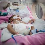Early care essential in premature births