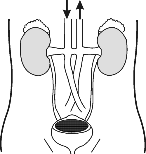 small resolution of Excretion and the excretory system - Natural Sciences Grade 9 - OpenStax CNX