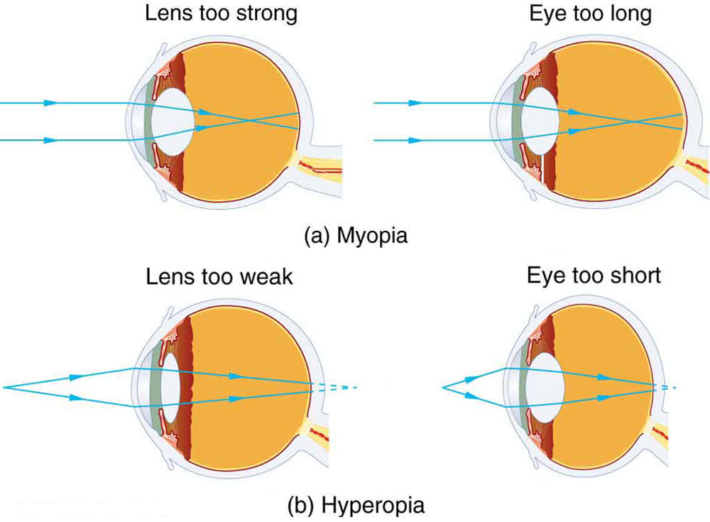 Farsightedness Eye Diagram Farsighted Lens Convex Or Concave