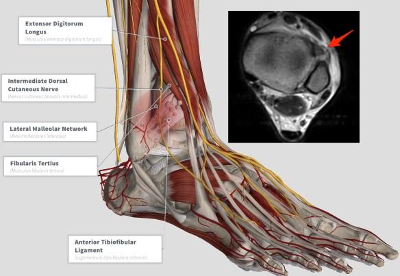 complete_anatomy3