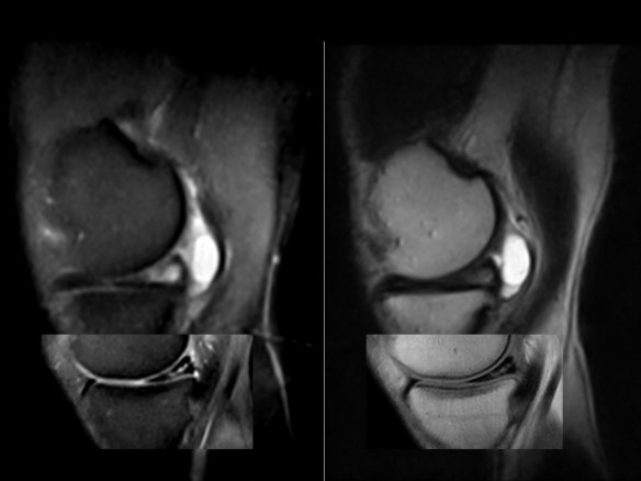 how to evaluate and manage a meniscal tear Anterior cruciate ligament injury: diagnosis, management, and prevention  locked displaced meniscal tear  surgical repair over conservative manage.