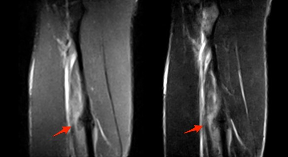 Peroneal Fracture Mri2
