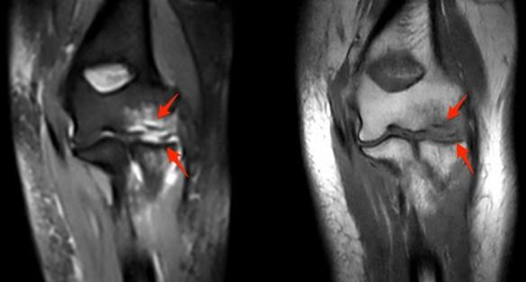 Condylar Fracture